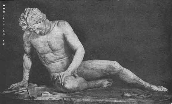 Искусство эпохи Эллинизма - Умирающий галл.